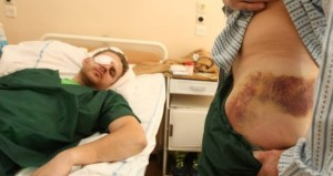 Injured Ukrainian Protesters Arrive For Treatment